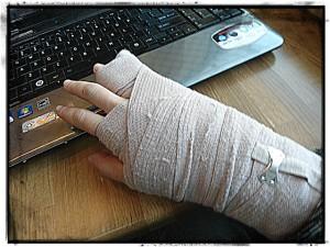Broken Hands & Healing Hearts