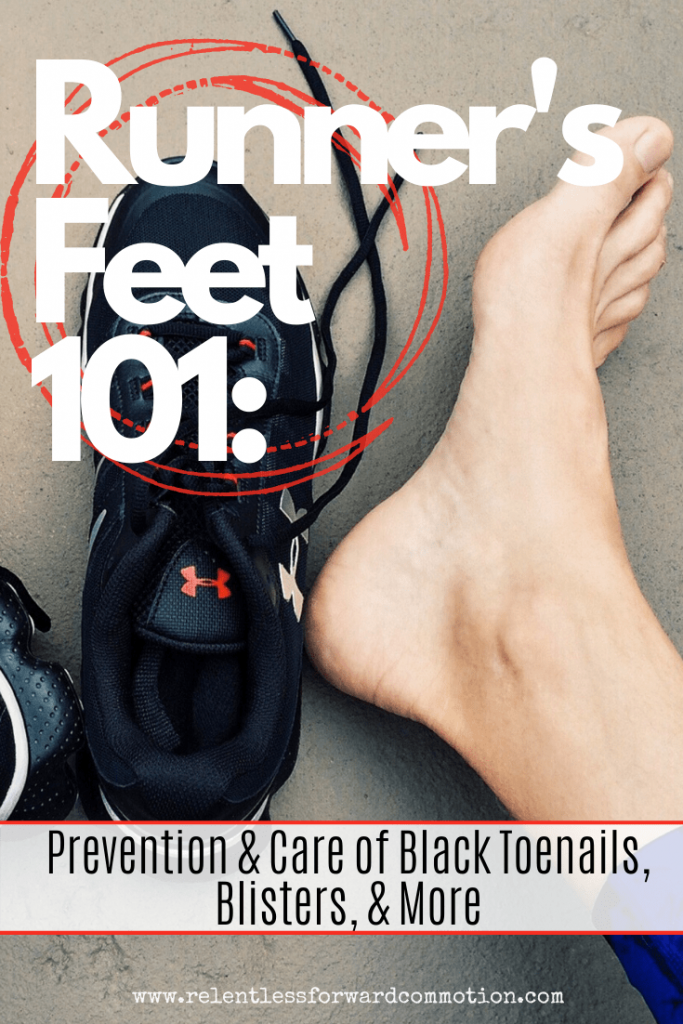 Runner's Feet 101: Prevention & Care of Black Toenails, Blisters, & More.