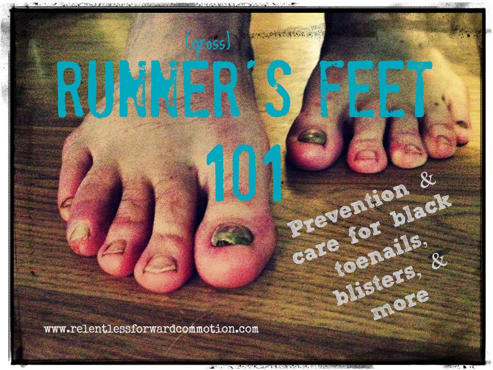 Runner's feet 101: Prevention & Care for Black Toenails, Blisters, & More