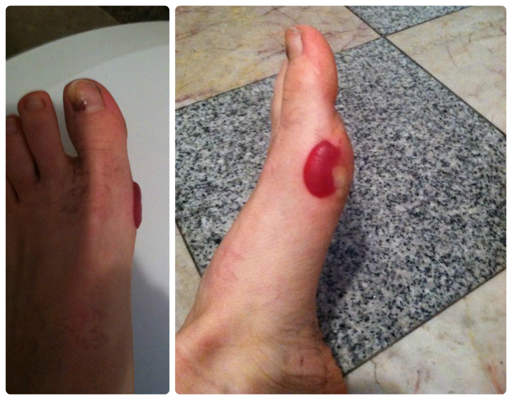 Runner's Feet 101: Blisters