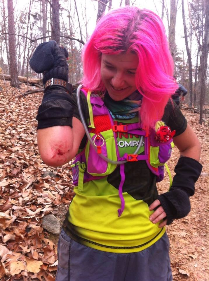A woman shows her bloodied elbow after falling while trail running