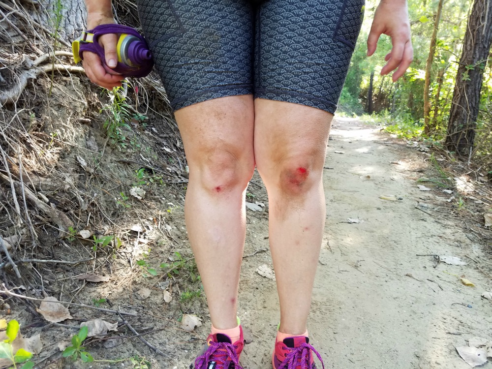 What to expect at your first trail race: you might fall!