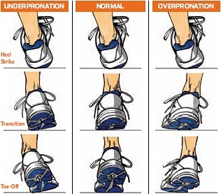 Running Shoe Mistakes: pronation vs supination explained
