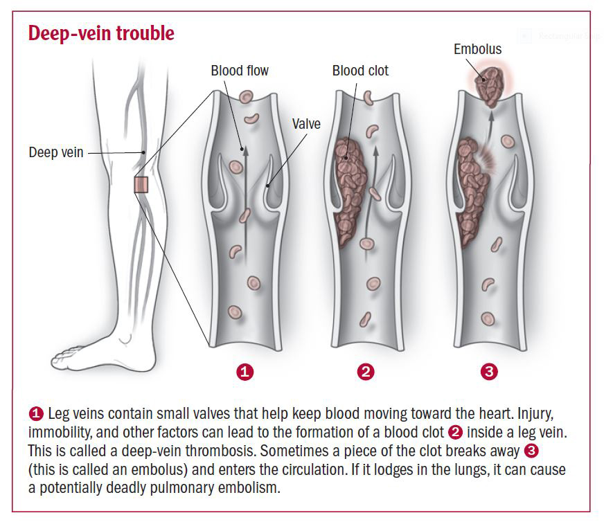 Deep Vein Thrombosis and Endurance Athletes