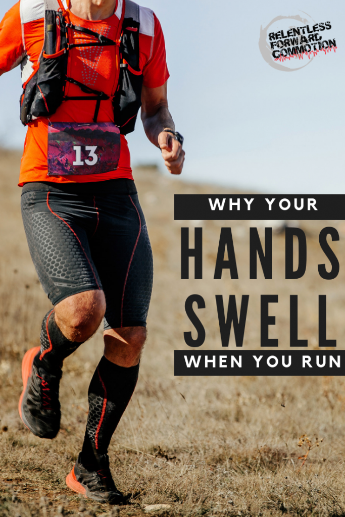 Why do my hands swell when I run