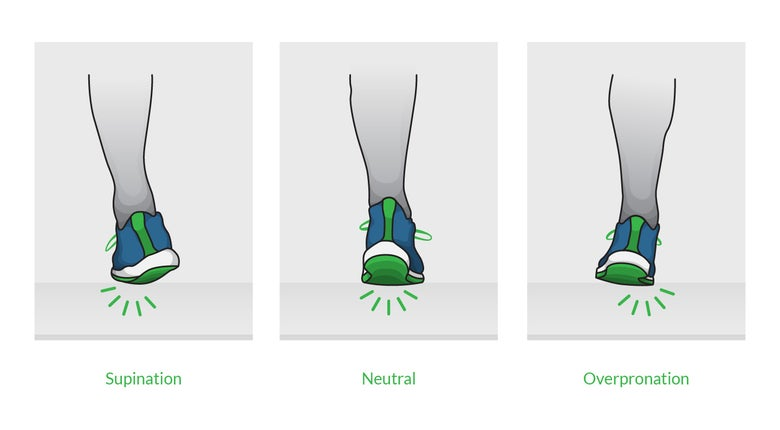 Diagram of foot demonstrating supination, neutral foot, and overpronation in runners